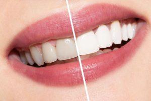 Tandenbleken